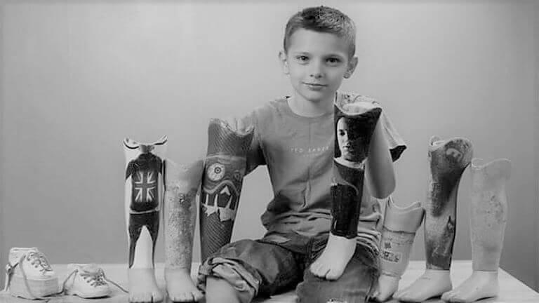 Детские протезы ног