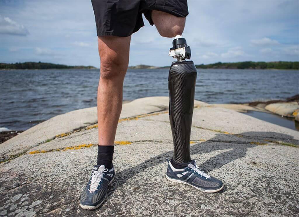 Система протезов с фиксацией на кости
