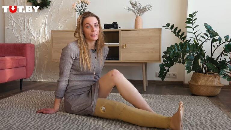 Девушка всю жизнь живет с протезом