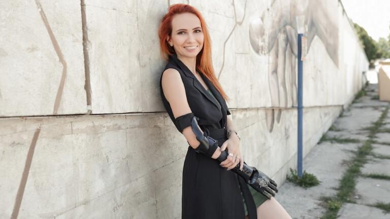 Девушка с протезом руки